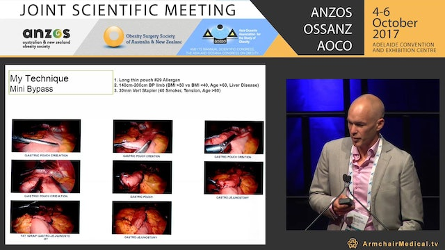 Patterns of surgery in Australia & the single anastomoses gastric bypass in Australia Are we there yet - David Martin