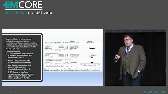 EMMO (Extracorporeal Membrane Oxygenation Resuscitation Dr Will Davies