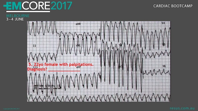 ECG Quiz Cardiac BootCamp 2017