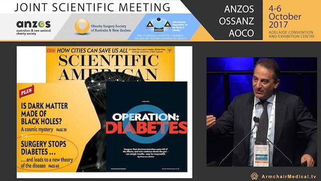 Modern understandings on mechanisms of surgery  mechanical or physiological - Prof Francesco Rubino