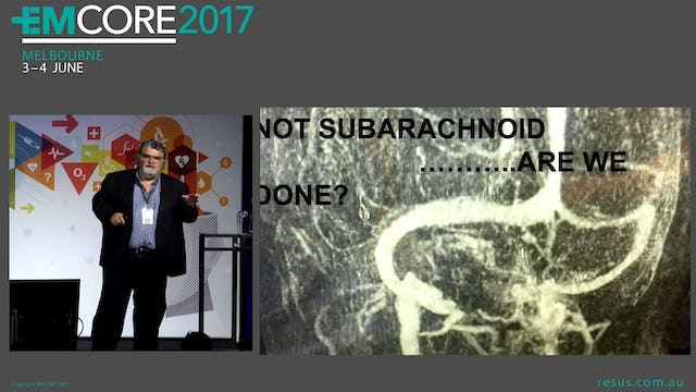 Headache - Not Subarachnoid Are we done Associate Professor Peter Kas