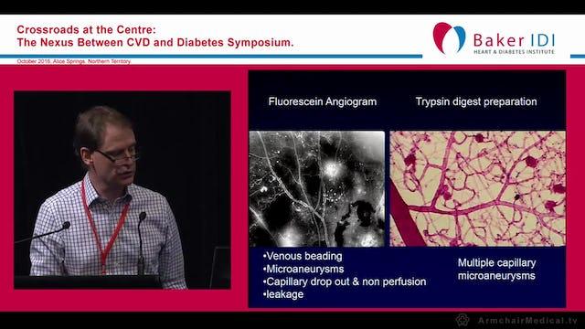 Diabetic Eye Problems Dr Tim Henderson