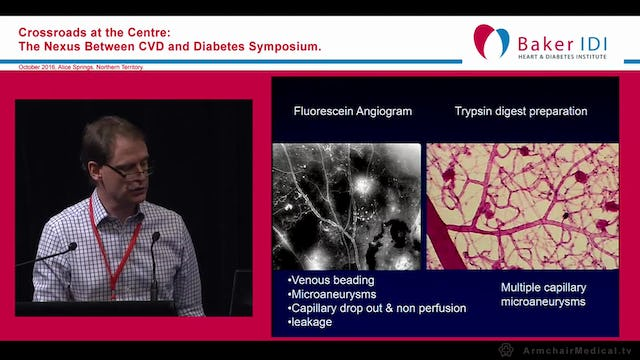 Diabetic Eye Problems Dr Tim Henderson