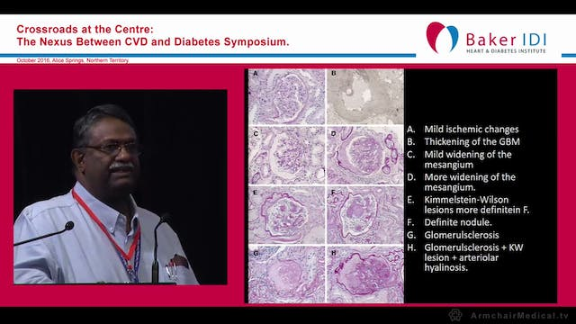Renal complication of Diabetes Mellit...