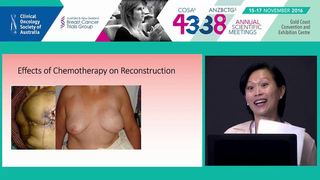 Breast Reconstruction & adjuvant Chemoradiotherapy Lily Vrtik