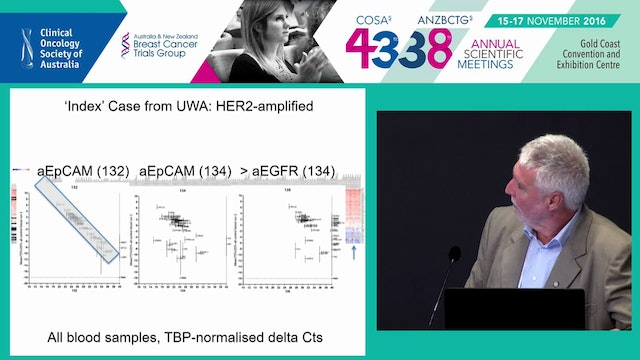 Circulating and disseminated tumour cells in breast cancer Erik (Rik) Thompson