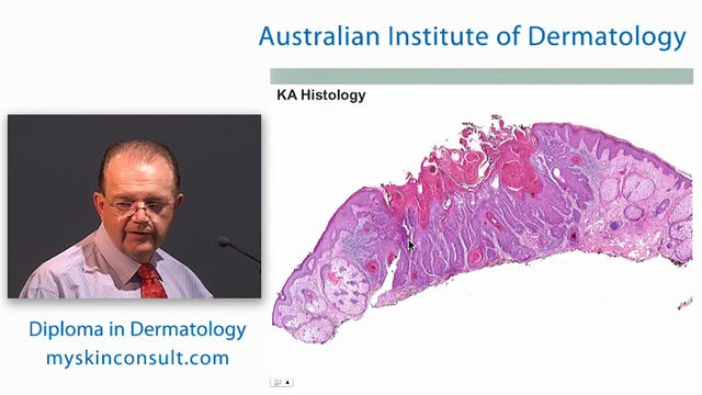 Common Presentations of Skin Cancer Dr. Ian McColl John Flynn Private Hospital