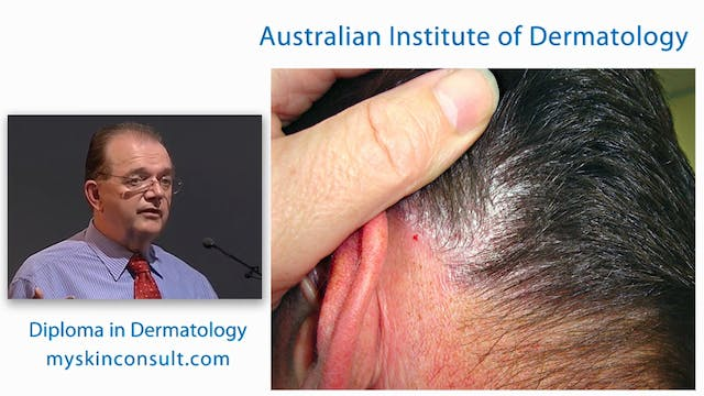 Management of Psoriasis and Eczema Dr. Ian McColl John Flynn Private Hospital