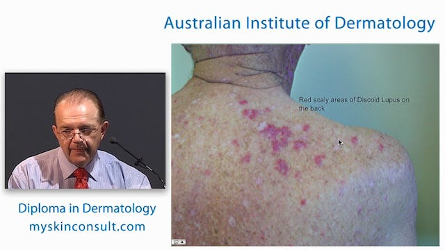 Blistering Skin Diseases and Immunofluorescence Tests Dr. Ian McColl John Flynn Private Hospital