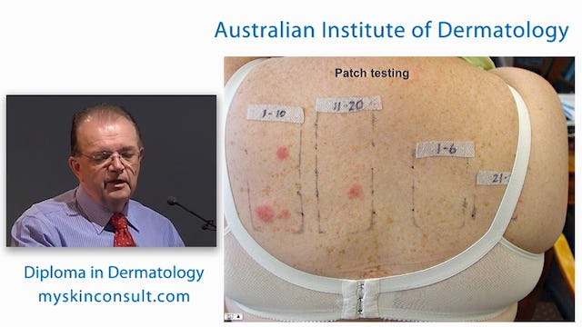 Eczema and Patch Testing Dr. Ian McColl John Flynn Private Hospital