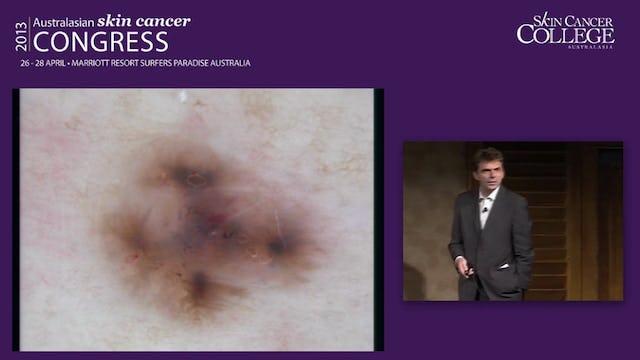 Last Man Standing Dermoscopy Challenge Prof Harald Kittler
