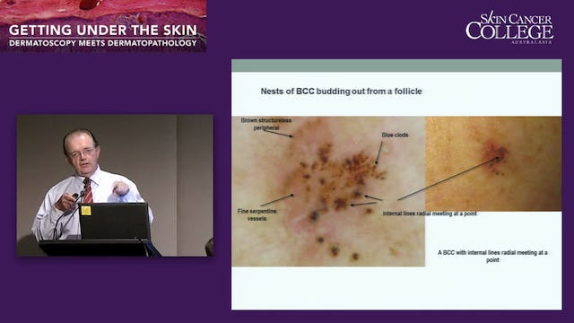 Basal and Squamous cell carcinomas Dr Clay Cockerell Dr Ian McColl