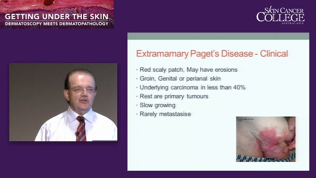 Other tumours important in skin cance...