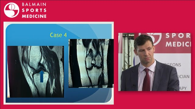 Hip & Knee Cases of relevance to General Practitioners David Broe POW SOS UNSW