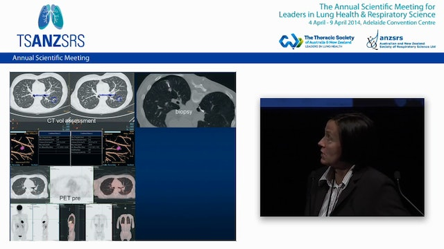 Thermal ablation of lung cancer Karin...