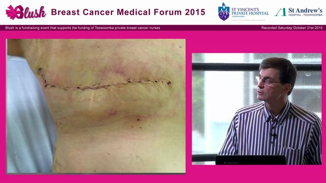 Mastectomy - Tim Porter