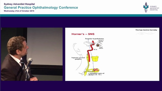 When to worry about ptosis Dr Dov Hersh