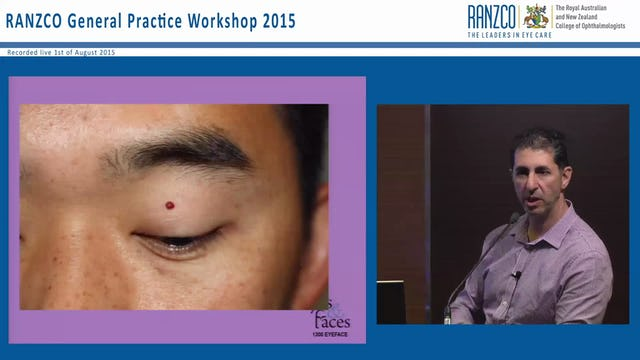 Lumps and bumps around the eye - Dr Anthony Maloof