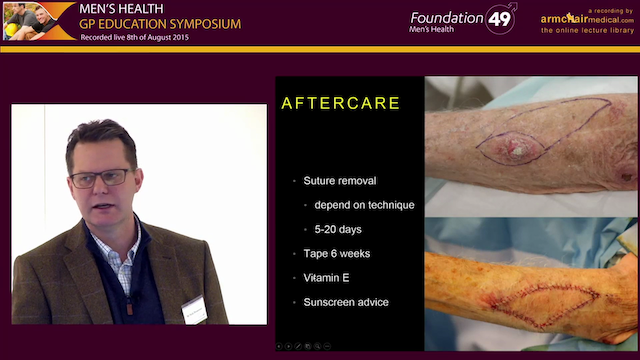 Skin Cancers - Understanding the Principles of Surgical Excision and Different Reconstructive Options Nick Houseman Plastic and Reconstructive Surgeon