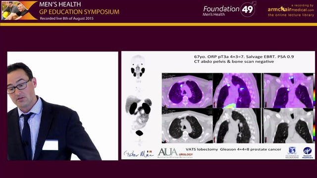 Patterns of Care for Prostate Cancer An Update Mr Dan Moon Urologist