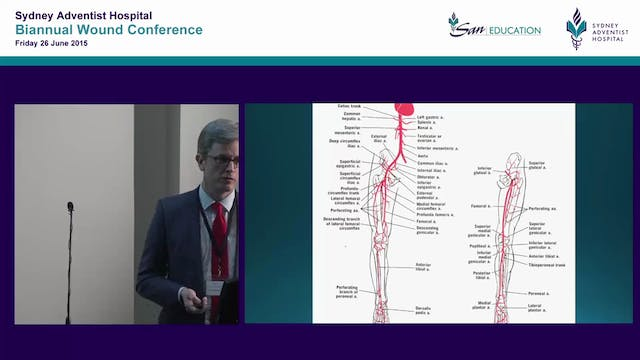 Arteries, veins & compression get squished Dr D Robinson