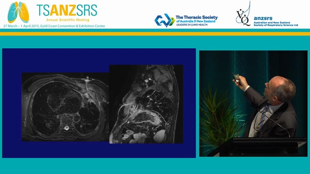 Radiology of pleural disease - what c...
