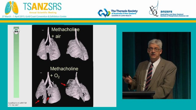 Revisiting mechanics in obstructive lung disease - do we know it all Charles Irvin Vermont Lung Center, USA