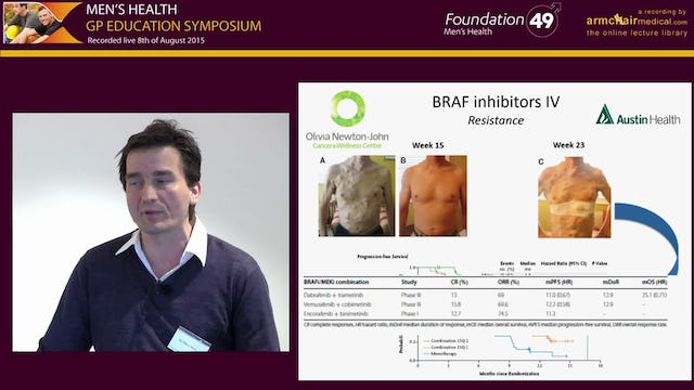 Treatment of Metastatic Melanoma -  Moving Towards Targeted Therapy and Modern Immunotherapy Dr Oliver Klein Oncologist