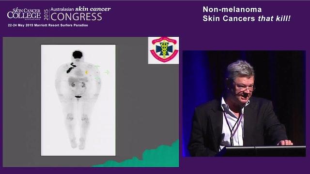 2A.2 Radiotherapy for non-melanomatou...
