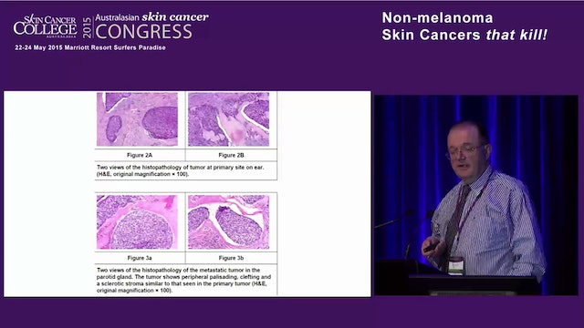 Cutaneous metastases – Dr Ian McColl