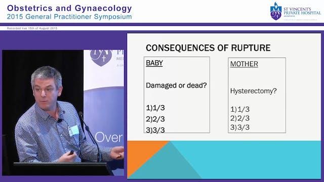 Complex births: VBAC / BREECH Dr Lion...