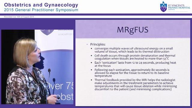 Fibroids Dr Miranda Robinson