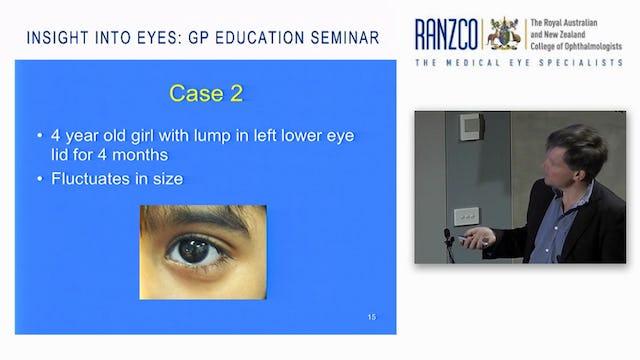 Paediatric Eye Problems  Prof James Elder