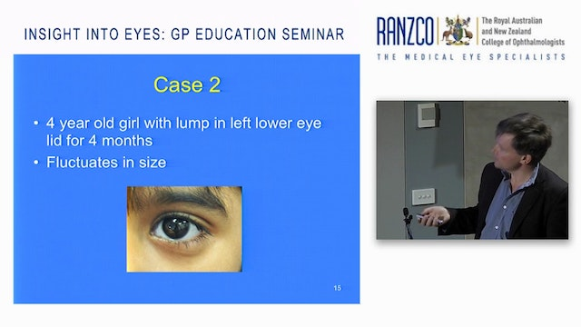 Paediatric Eye Problems  Prof James Elder