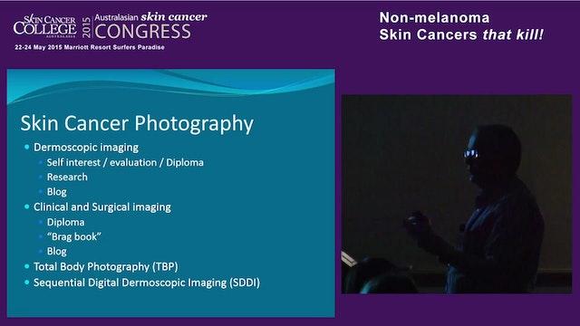 Dermoscopy of Non Melanoma Skin Cance...