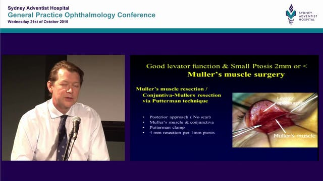 Eyelid ptosis surgery indications and management Dr Simon Taylor