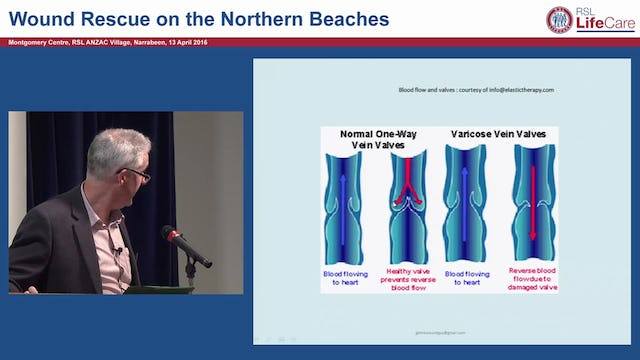 Chronic ulcers- venous & arterial Gary Bain