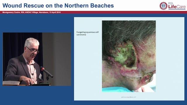 Malodourous Wounds Gary Bain