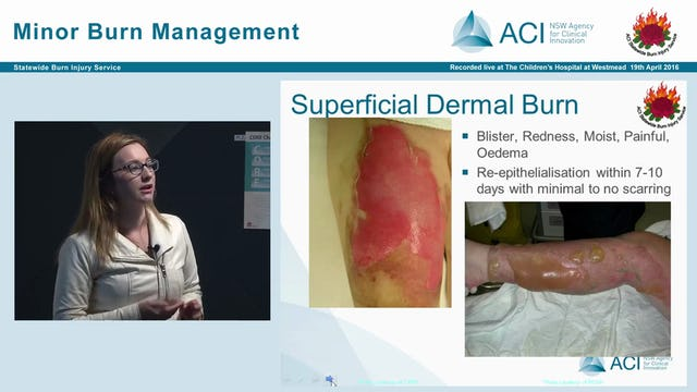 Burns assessment and overview Tracy Hurley