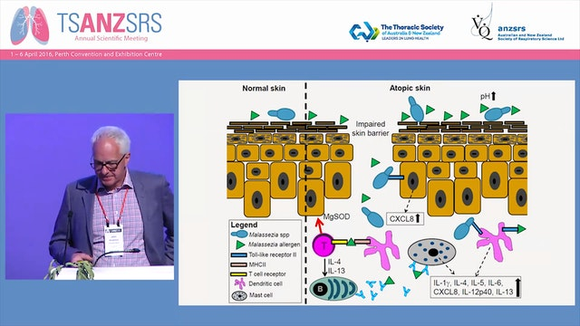Asthma, allergy and ALSPAC John Henderson, University of Bristol, UK