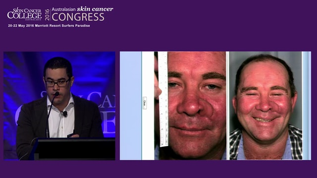 Aggressive skin malignancies & their surgical management David Sharp