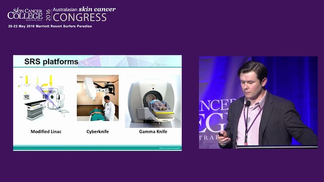 Gamma knife radiosurgery for melanoma brain metastases Mark Pinkham