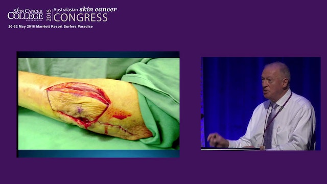 Melamoma trends, treatments and techniques Keystone Perforator Island flap Prof Felix Behan