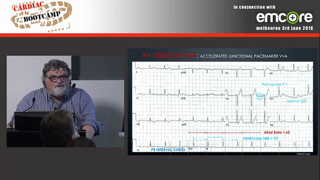 ECG in 20 secs Rate rhythm P-QRS relationship Assoc Prof Peter Kas