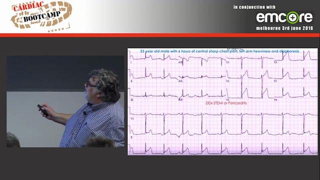 ECG in 20 secs QRS Complex A Prof Peter Kas