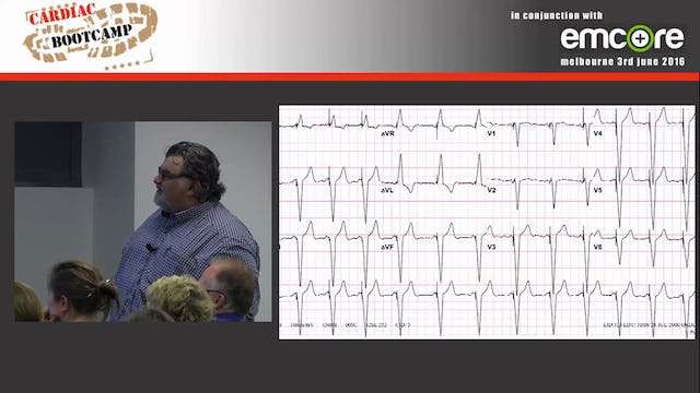 Pacing and Pacemakers A Prof Peter Kas