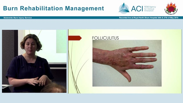 Burn Wound Management in Rehabilitation setting Kate Welsh