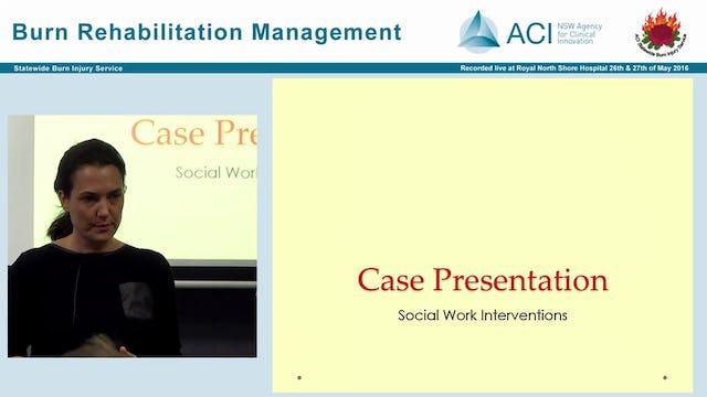 Psychosocial impact and management of burn injuries Julia Kwiet