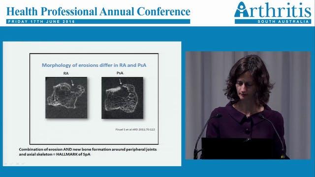 Psoriatic Arthritis Dr Eliza Pontifex