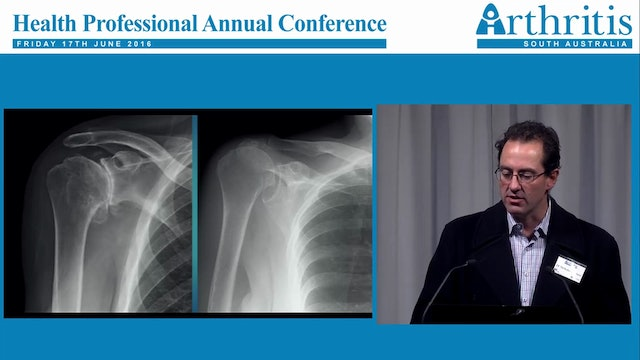 Shoulder Arthritis Surgical Perspective Nicholas Chabrel Orthopaedic Shoulder and Upper Limb Surgeon